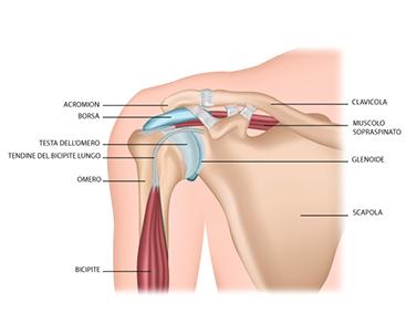 Lussazione della spalla quando serve l intervento chirurgico  5168af03ed70